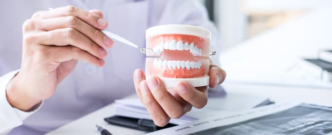 Oral Surgery, Southcommon Dental in Mississauga