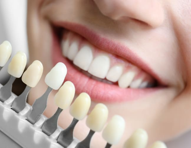 Teeth Whitening, Southcommon Dental, Mississauga